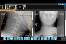 IQ-4VIEW measurement tools in use screenshot