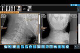 IQ-4VIEW Cervical Curve Screenshot