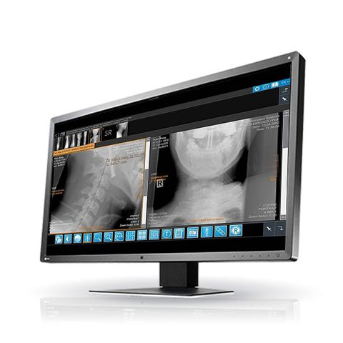 iQ-4VIEW: IQ-WEBX Plugin
