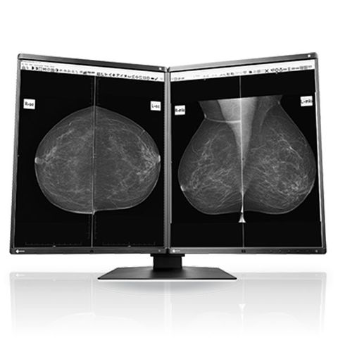"Eizo Radiforce GX560 21.3"" 5MP Monochrome LCD Monitor"