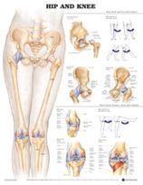 Chart, Hip and Knee Soft Lamination