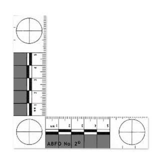 ABFO No 2 Bitemark Scale