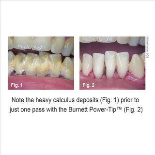 30K BURNETT POWER TIP, INTERNAL WATER