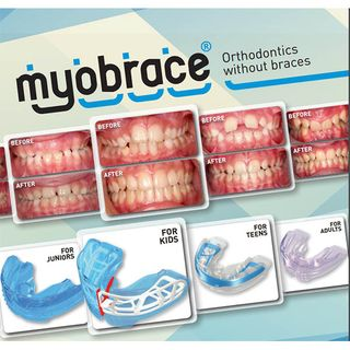 BROCHURE - MYOBRACE FOR ADULTS
