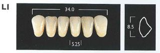 L1-A4 LOWER ANTERIOR MONARCH TEETH