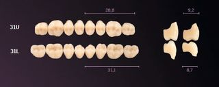 31-A1 MONDIAL TEETH UPPER POSTERIOR