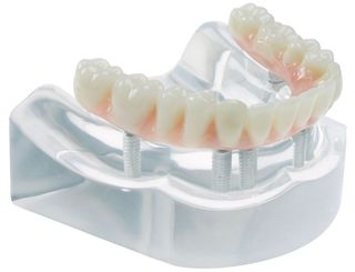 MODEL 6 IMPLANT HIGH WATER BRIDGE