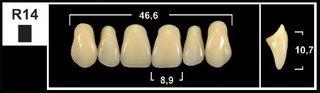 R14 A3.5 UPPER ANTERIOR TRIBOS TEETH