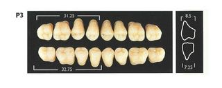 P3-C1 UPPER POSTERIOR MONARCH TEETH
