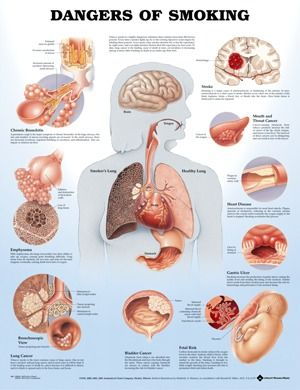 Chart Dangers of Smoking