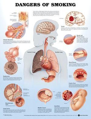 Chart Dangers of Smoking