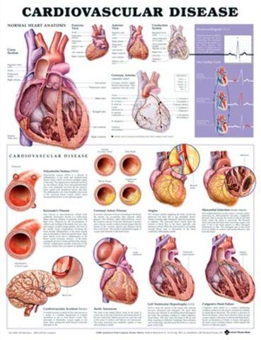 Chart Cardiovasular Disease